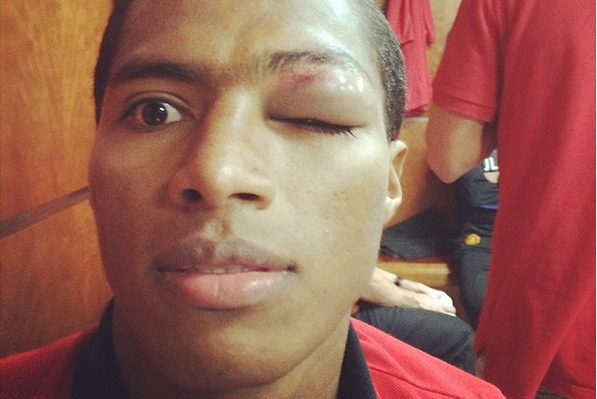 Antonio Valencia's Black Eye Gets Selfie in the Manchester United Dressing Room