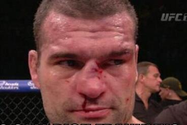 Dan Henderson Destroyed Shogun Rua's Nose