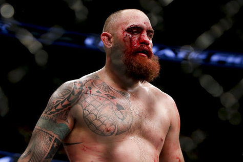 UFC on FOX 11 Medical Suspensions