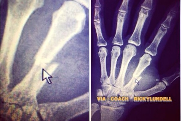 Coach Posts X-Ray of Travis Browne's Broken Hand Suffered at UFC on FOX 11