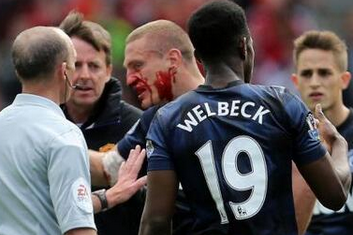 Pic: Vidic's Face Bloodied by Lambert Elbow