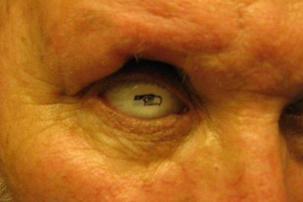Seattle Fan Receives Seahawks-Themed Prosthetic Eye as Anniversary Present