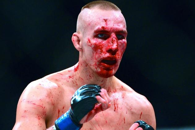 McDonald has had several nose-breaks in the UFC.