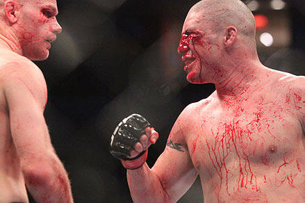 UFC on FUEL TV 1: Diego Sanchez vs. Martin Kampmann II Breakdown