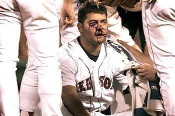 40 Most Horrifying Comebackers in Baseball History