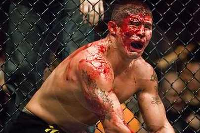MMA Fighter Appreciation 101: Blood, Bruises and Broken Bones