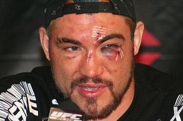That'll Leave a Mark: The Worst Injuries in UFC History