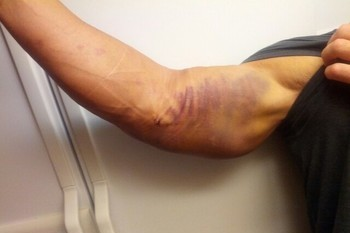 Dear Athletes, Please Stop Tweeting Gross Injury Pics