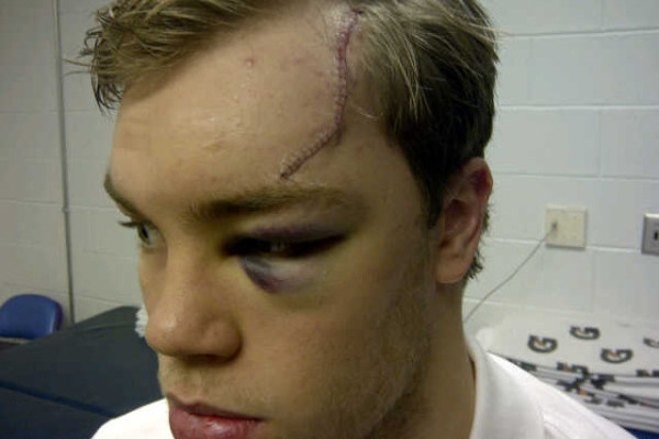 Disgusting Injury Pics Athletes Post on Twitter