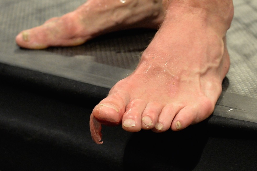 Michael  Injury Versus Looks Leites Bisping