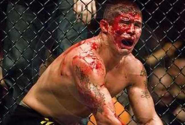 Mma Fighter Appreciation 101 Blood Bruises And Broken