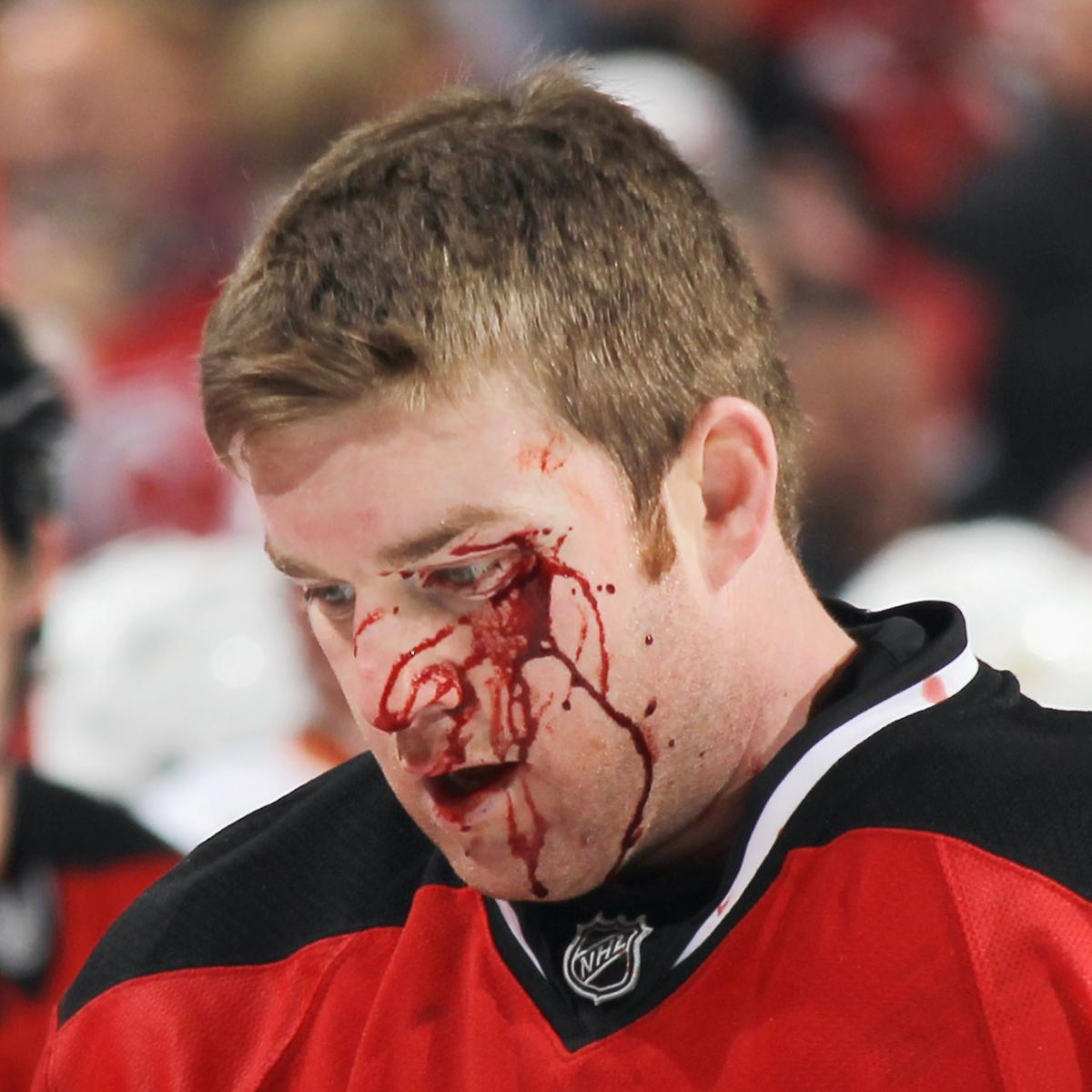 NHL: The 50 Most Gruesome Injuries in Hockey History   Bleacher