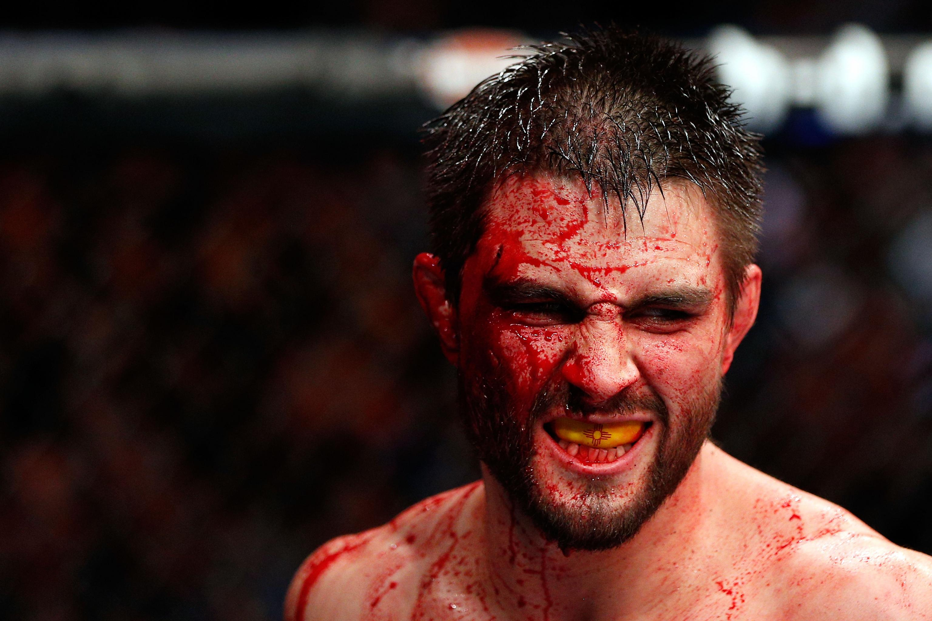 Carlos Condit, a Treasure of Fighting, Begins His Long, Slow Goodbye | Bleacher Report | Latest News, Videos and Highlights